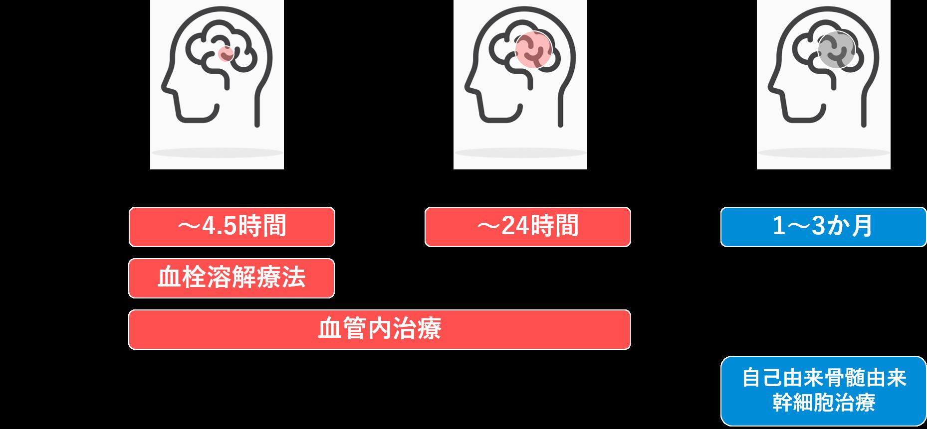 脳梗塞の時間経過と治療